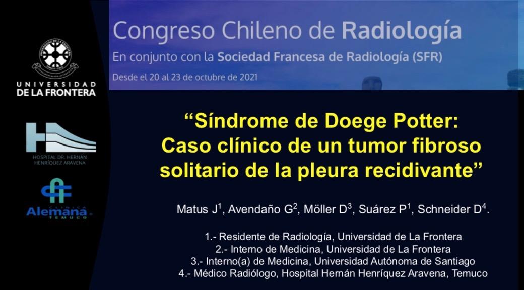 «Síndrome de Doege Potter: Caso clínico de un tumor fibroso solitario de la pleura recidivante»