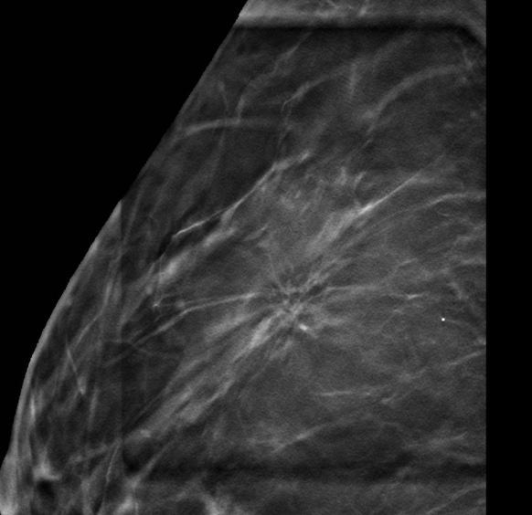 Biopsia mamaria bajo Tomosíntesis. Experiencia inicial en distorsiones de la arquitectura.