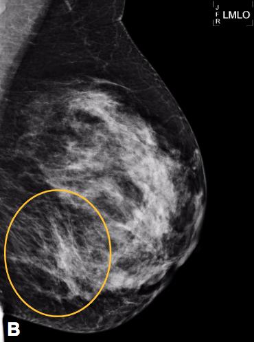 Mastitis granulomatosa: lo que el radiólogo debe saber. Revisión Pictográfica.