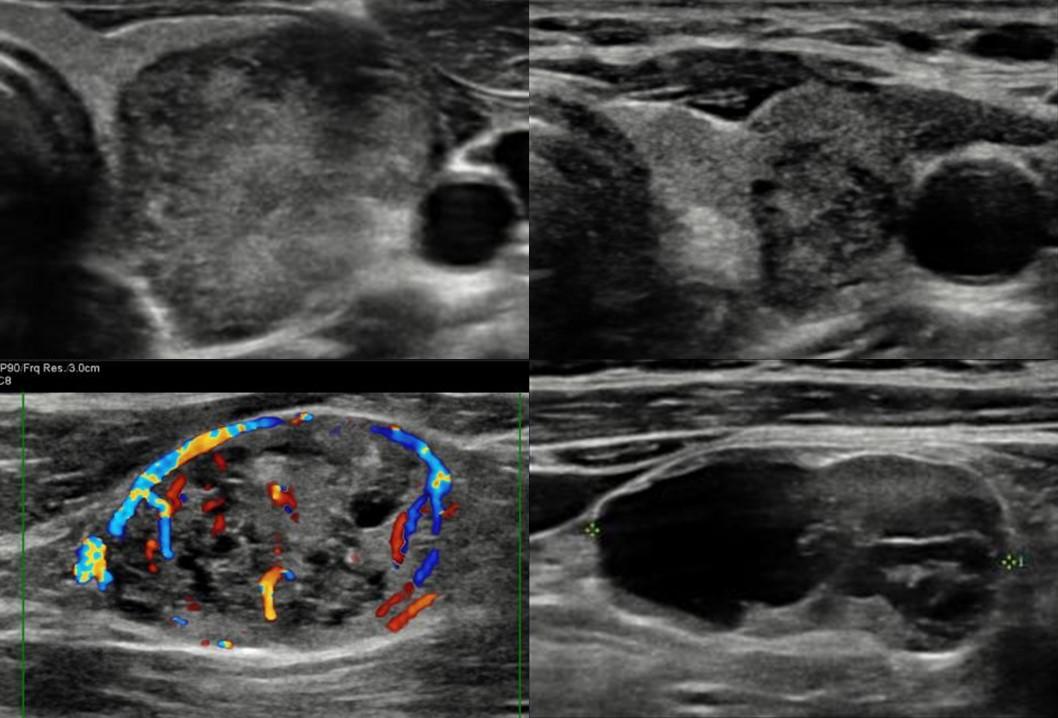 Etapificación ecográfica prequirúrgica en cáncer tiroideo