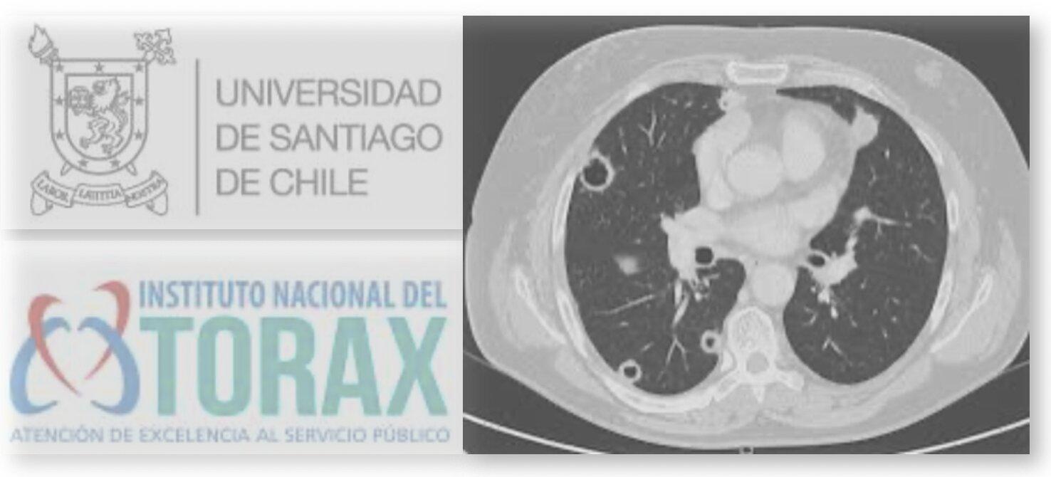 Manifestaciones imagenológicas pulmonares de la Granulomatosis con Poliangeitis: Reporte de casos