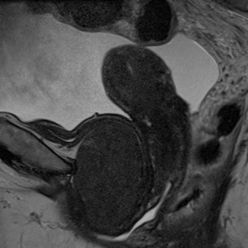 Cómo, cuándo y por qué sospechar leiomiomas extrauterinos en el abdomen-pelvis (énfasis en RM)