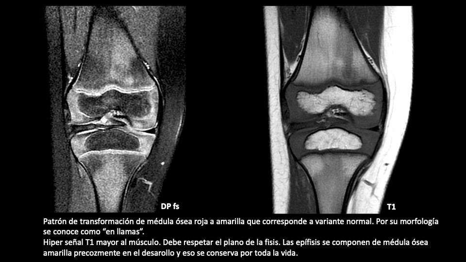 Aproximación diagnóstica al edema óseo pediátrico